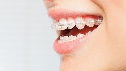 ceramic braces anderson sc